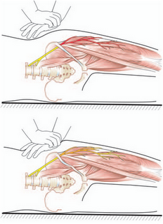 meralgia paresthetica – lateral femoral cutaneous neuropathy - the, Muscles