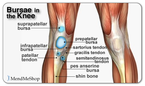 Peroneal Tendonitis Treatment Nj Piscataway additionally Patellofemoral Instability Diagnosis And Management likewise Knee Anatomy Quadriceps Tendon also What Is Patello Femoral Pain Syndrome together with 469148486156456697. on taping for patellar dislocation
