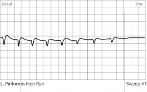 emg disease the pain source makes learning about pain