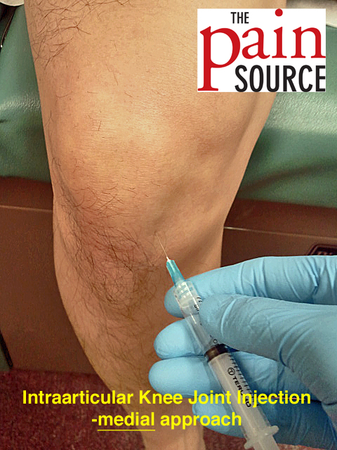 intra articular steroid injection-ankle