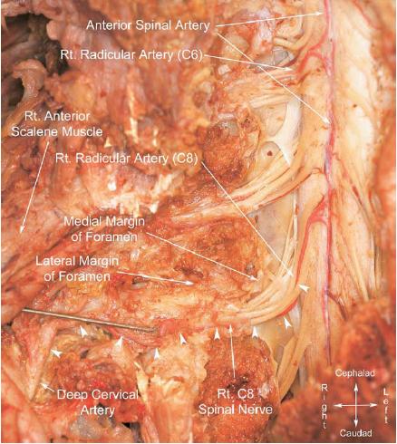 Complications of Cervical Transforaminal Epidural Steroid InjectionsLumbosacral Plexus Cadaver