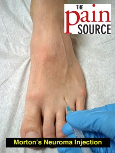 Morton's Neuroma Injection – Technique and Tips - The Pain