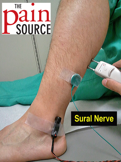Setup - Sural Sensory NCS - The Pain Source - Makes Learning About