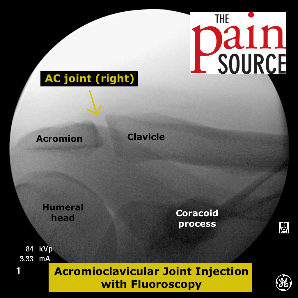acromioclavicular joint injection with fluoroscopy - the pain, Muscles