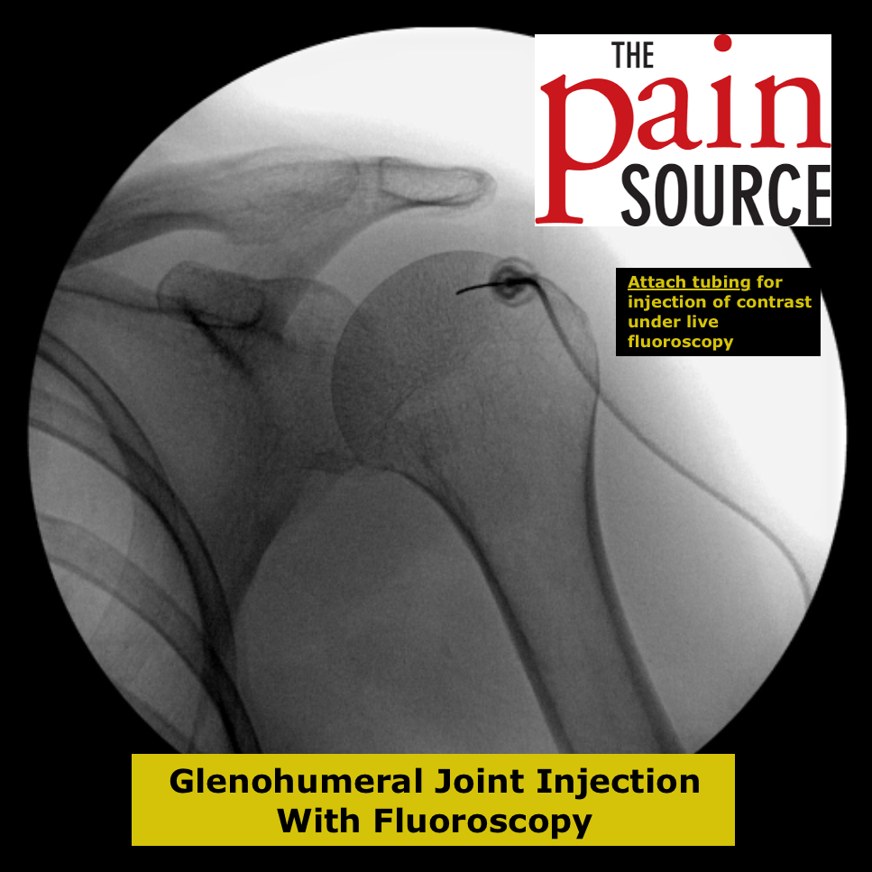 glenohumeral steroid injection cpt code