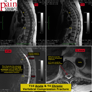 T10 acute and T4 chronic vertebral compression fracture - The Pain Source