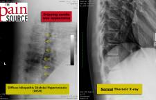 Diffuse Idiopathic Skeletal Hyperostosis (DISH)