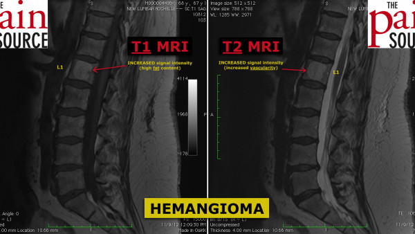 Hemangioma in the Spine