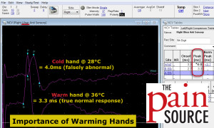 Importance of Warming Hands for NCS - ulnar nerve - The Pain Source