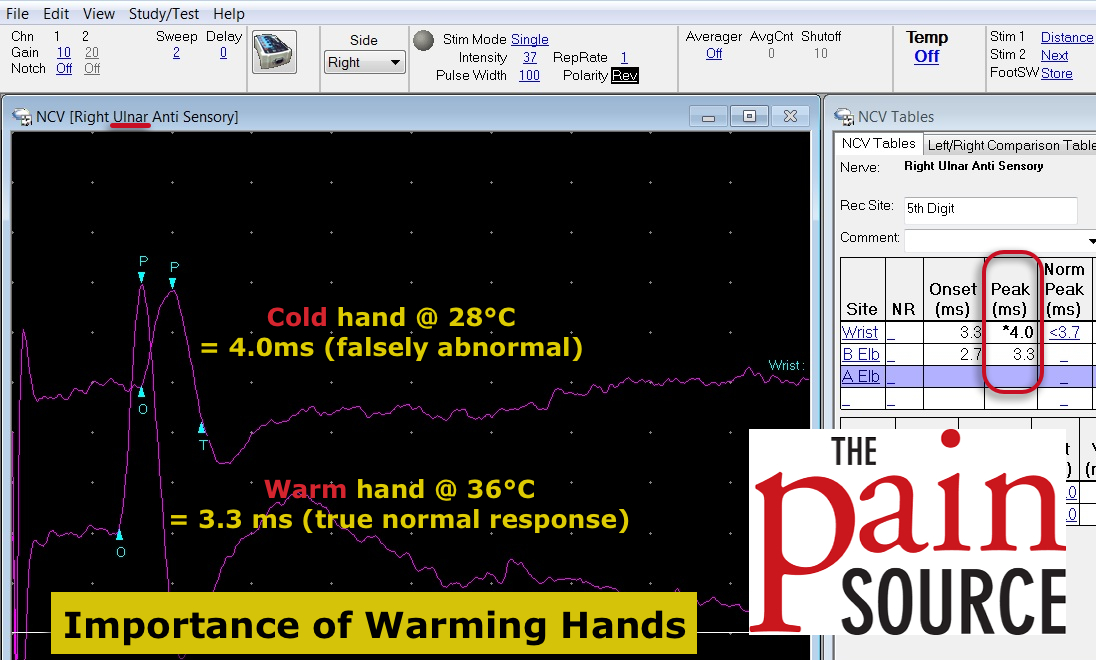 Warming Cold Hands and Feet for Nerve Conduction Studies