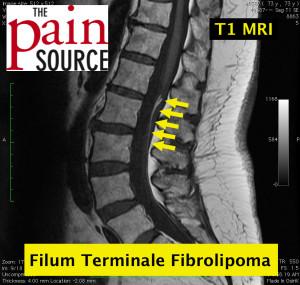 Lumbar filum terminale fibrolipoma - T1 MRI