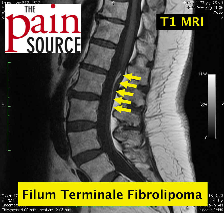 Fibrolipoma Of The Filum Terminale The Pain Source Makes Learning About Pain Painless The last portion of the pia mater. the pain source