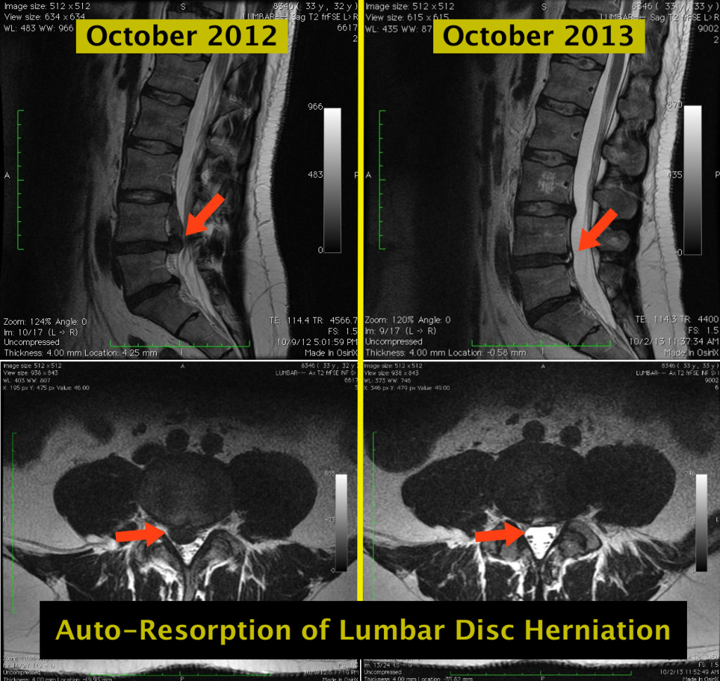 Resorption of lumbar disc herniation